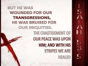 Isaiah 53:5 He Was Wounded For Our Transgressions white