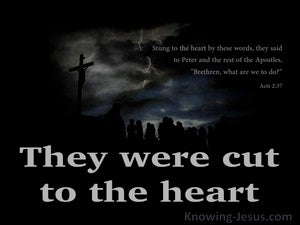 Acts 2:37 Brethren What Are We To Do (black)